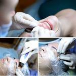 Профессиональная чистка лица (ст.м. Крещатик)