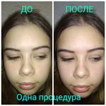 Процедура сужения пор и выравнивания тона кожи